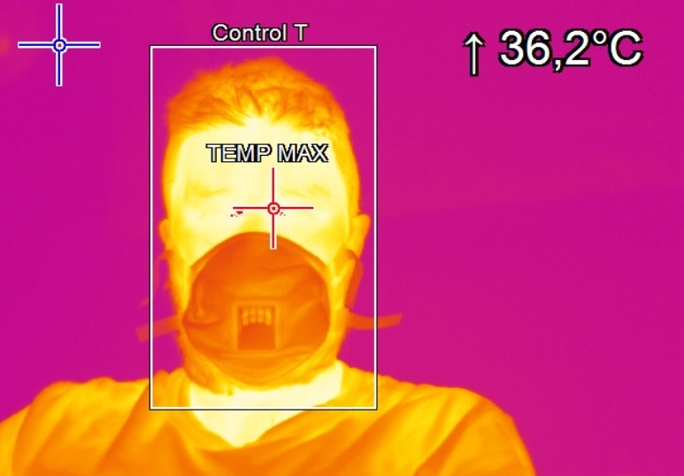 Thermography, what it is and what it is used for