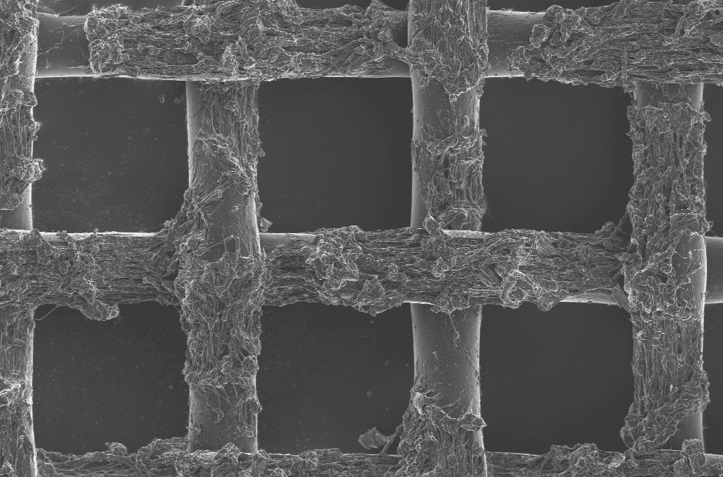 Scanning electron microscopy (SEM), what is it for?
